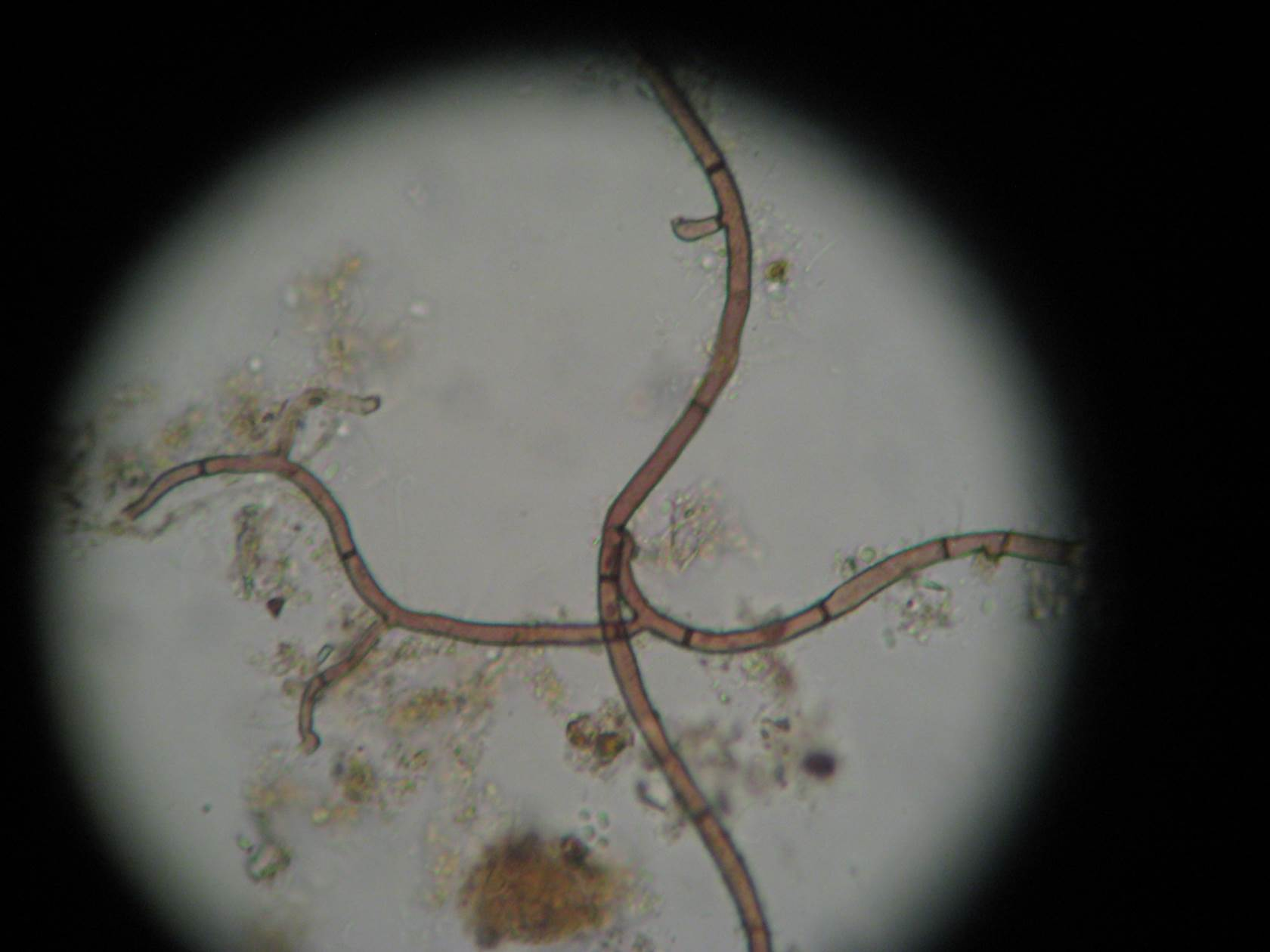 Beneficial Fungi Magnified 400X